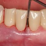 Пародонтит приводит к потере зубов