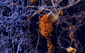 Ученые совершили прорыв в лечении болезни Альцгеймера