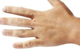 Причины возникновения и методы лечения бородавок