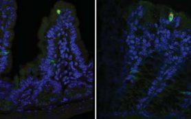 Как норовирус поражает организм