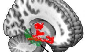 Недостаток сна может увеличить риск болезни Альцгеймера