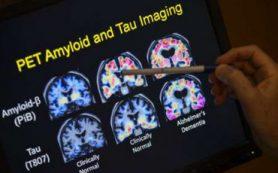 Новые способы определения болезни Альцгеймера на ранней стадии
