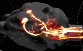 Российские и швейцарские биологи выяснили, как заставить мозг вылечить паралич