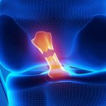 Оценка риска вторичного повреждения передней крестообразной связки после возобновления тренировок