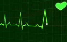 В ИНХ СО РАН усовершенствовали электроды для кардиостимуляции и диагностики аритмии