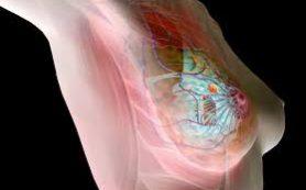 Рак молочной железы можно предупредить изменением образа жизни