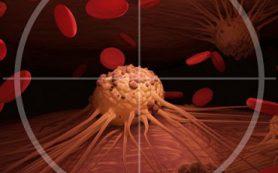 Исследователи МФТИ и ИБХ РАН открыли белок, который поможет в лечении опухолей легких