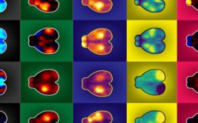 Движения тела оказывают сильное влияние на работу мозга