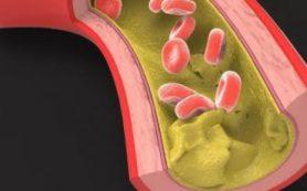 Исследователи РЭУ и НИИОПП нашли новый способ изучения мутаций, связанных с атеросклерозом