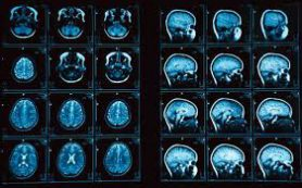 Обнаружены перспективные вещества для борьбы с болезнью Альцгеймера