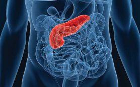 Пересадка поджелудочной железы для лечения диабета