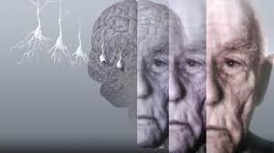 Диагностировать болезнь Альцгеймера станет проще
