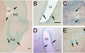 Как восстанавливают нервные клетки