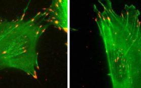 «Молчаливый код» белка актина влияет на движение клеток