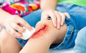Новый биосовместимый клей быстро закрывает раны и останавливает кровотечение